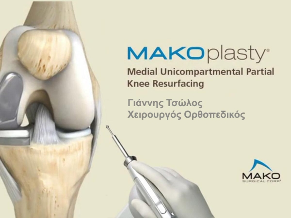 MAKOplasty® Partial Knee Resurfacing